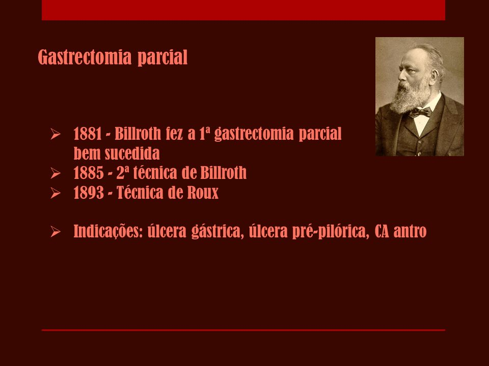 Gastrectomia parcial 1881 - Billroth fez a 1ª gastrectomia parcial bem sucedida.