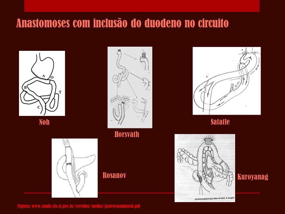 Anastomoses com inclusão do duodeno no circuito