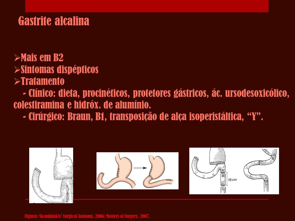 Gastrite alcalina Mais em B2 Sintomas dispépticos Tratamento