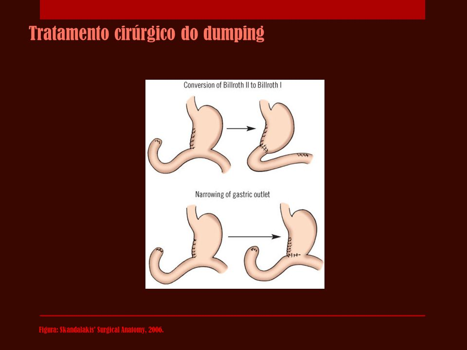 Tratamento cirúrgico do dumping