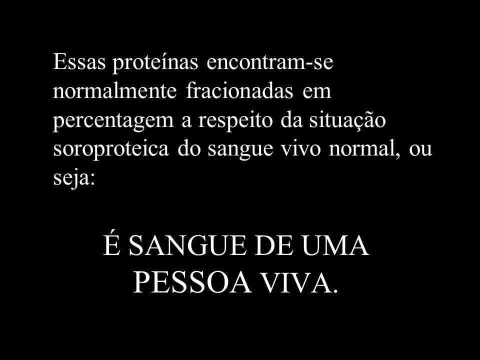 É SANGUE DE UMA PESSOA VIVA.
