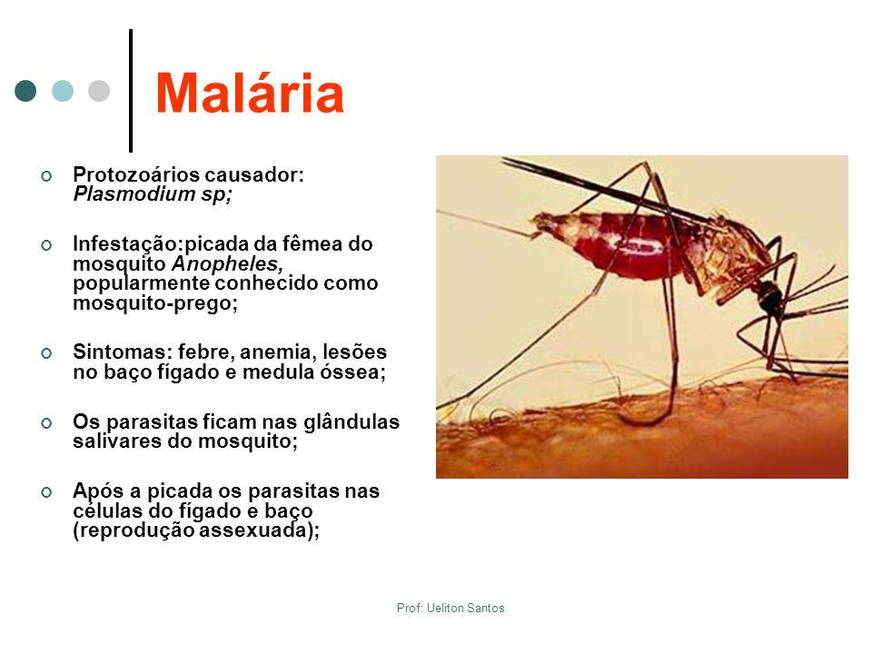Malária Protozoários causador: Plasmodium sp;
