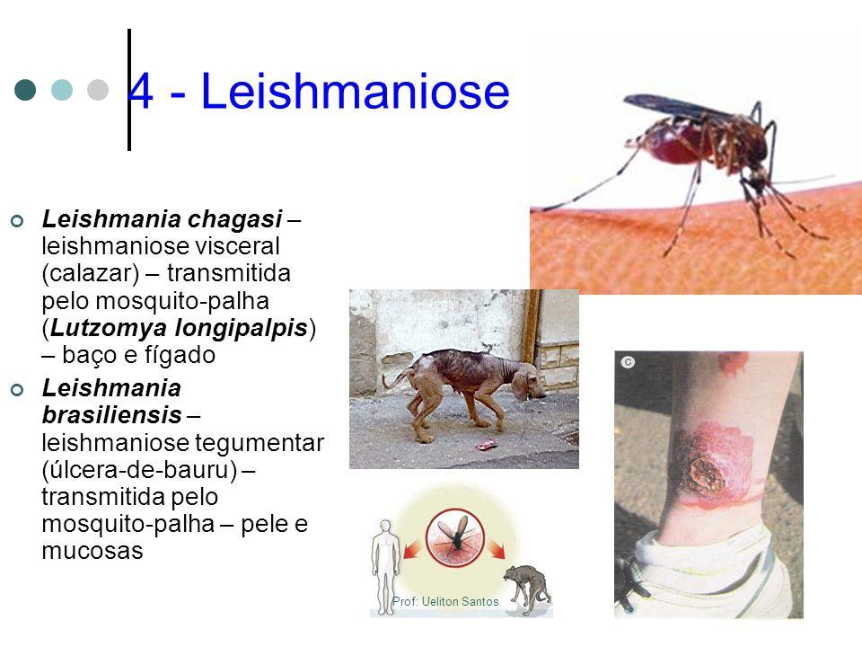 4 - Leishmaniose Leishmania chagasi – leishmaniose visceral (calazar) – transmitida pelo mosquito-palha (Lutzomya longipalpis) – baço e fígado.