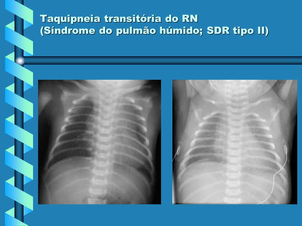 Taquipneia transitória do RN (Síndrome do pulmão húmido; SDR tipo II)