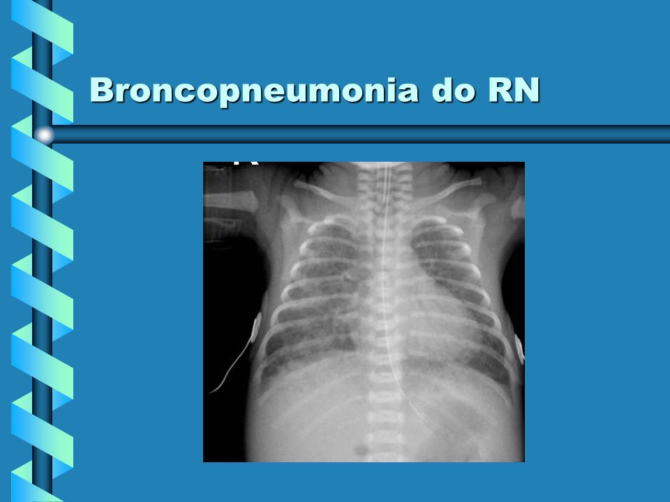 Broncopneumonia do RN