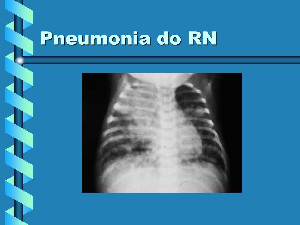 Pneumonia do RN