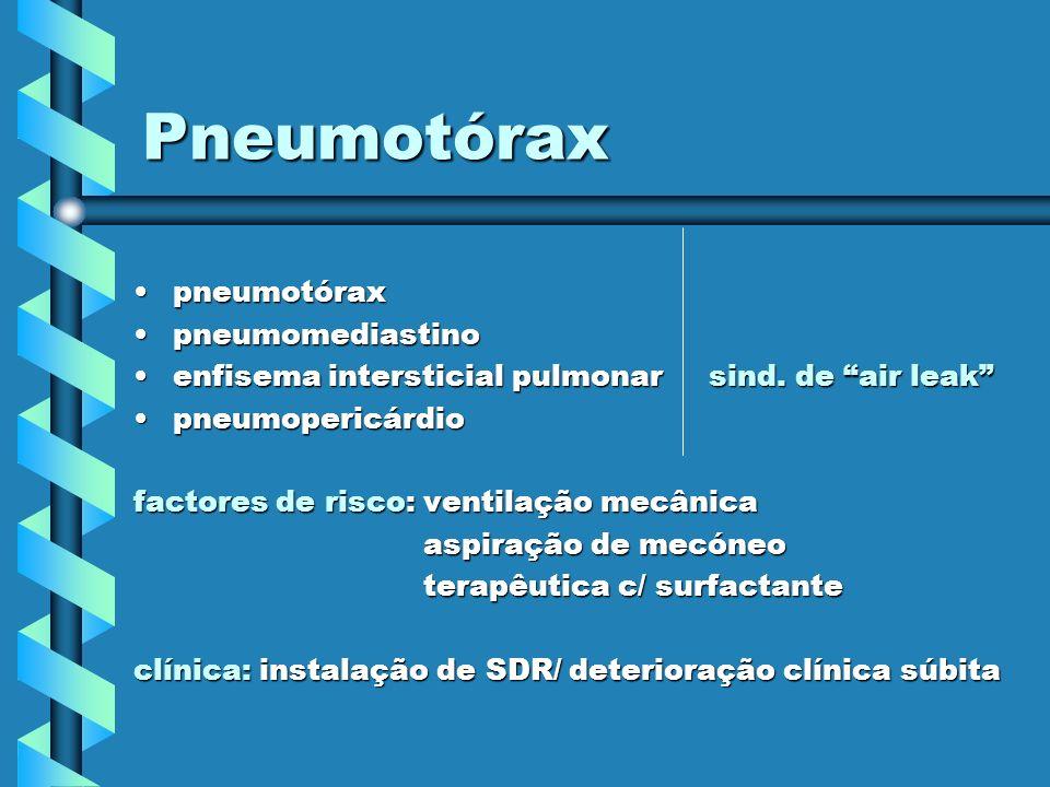 Pneumotórax pneumotórax pneumomediastino