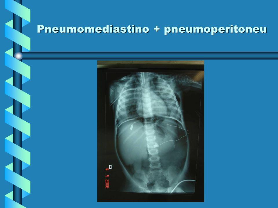 Pneumomediastino + pneumoperitoneu