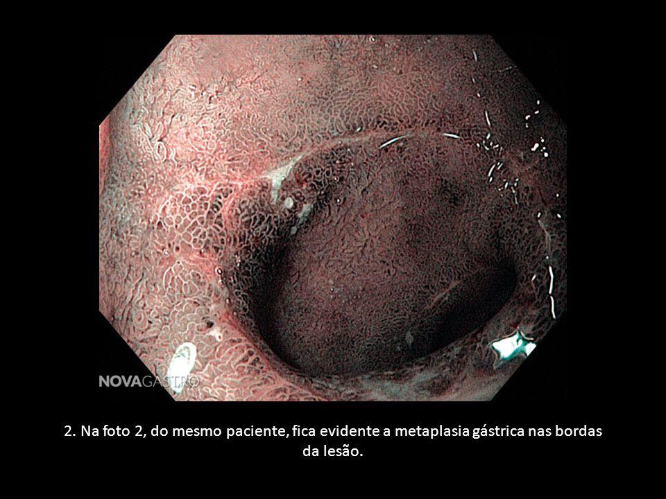 2. Na foto 2, do mesmo paciente, fica evidente a metaplasia gástrica nas bordas da lesão.