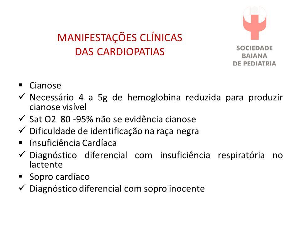 MANIFESTAÇÕES CLÍNICAS DAS CARDIOPATIAS
