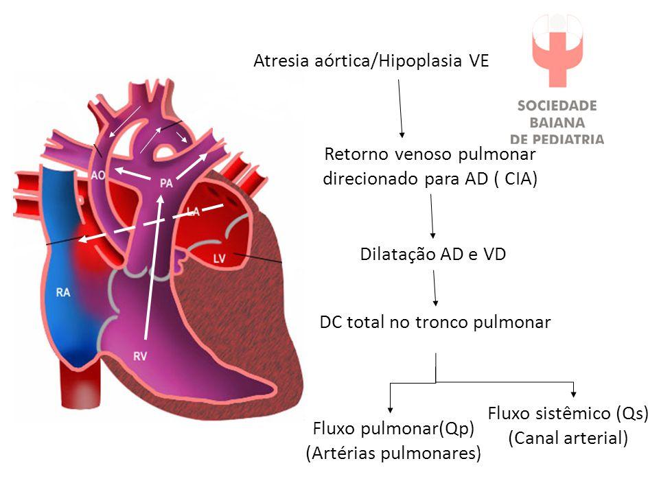 Atresia aórtica/Hipoplasia VE