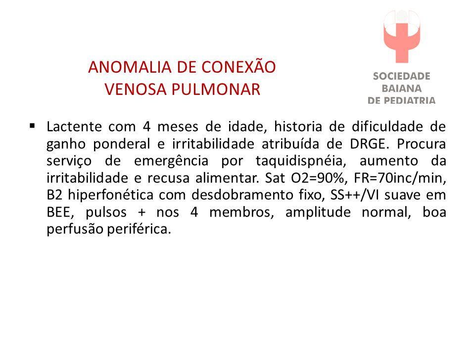 ANOMALIA DE CONEXÃO VENOSA PULMONAR