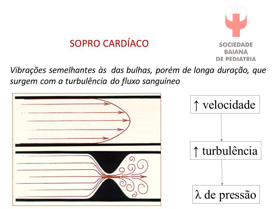 ↑ velocidade ↑ turbulência λ de pressão SOPRO CARDÍACO