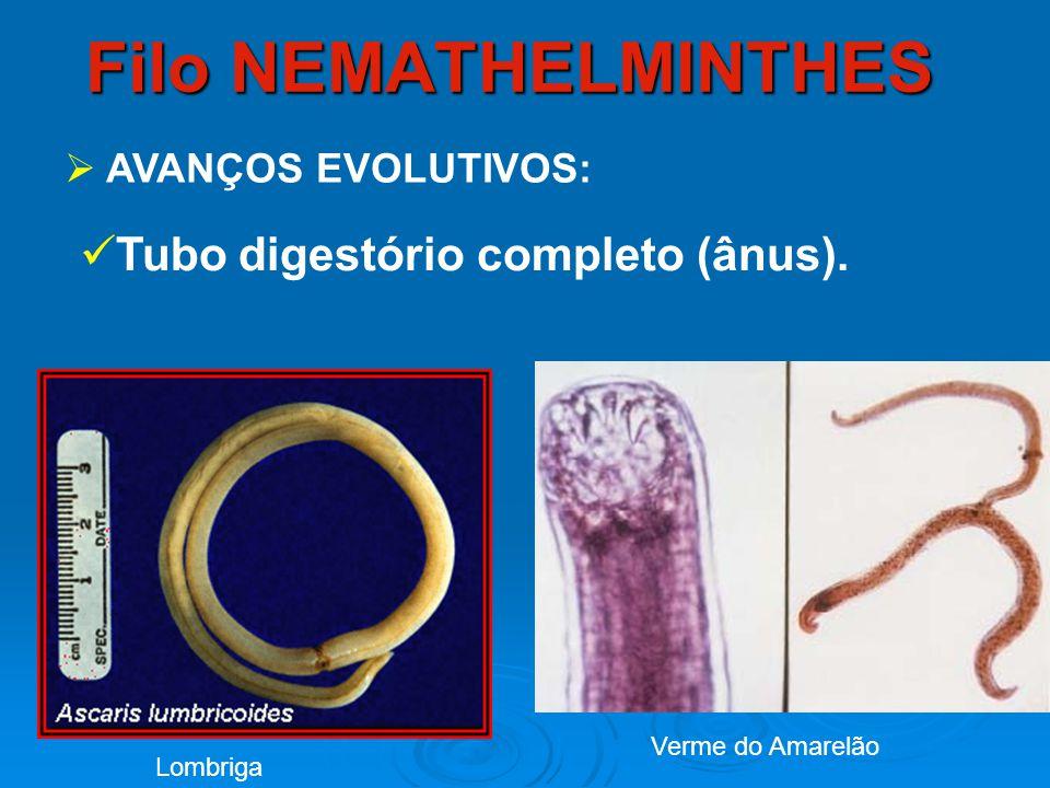 Filo NEMATHELMINTHES Tubo digestório completo (ânus).