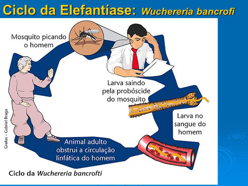 Ciclo da Elefantíase: Wuchereria bancrofi