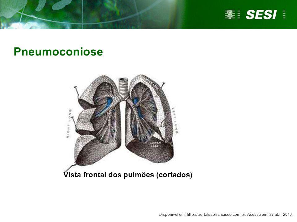Pneumoconiose Vista frontal dos pulmões (cortados)