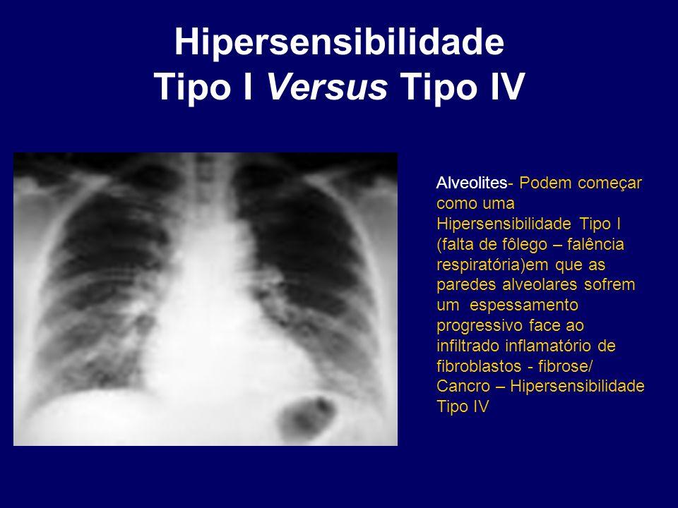 Hipersensibilidade Tipo I Versus Tipo IV