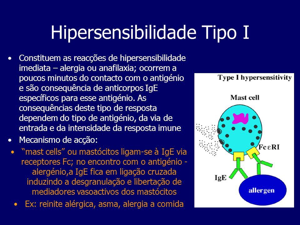 Hipersensibilidade Tipo I
