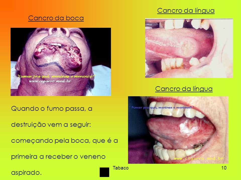 Cancro da língua Cancro da boca Cancro da língua