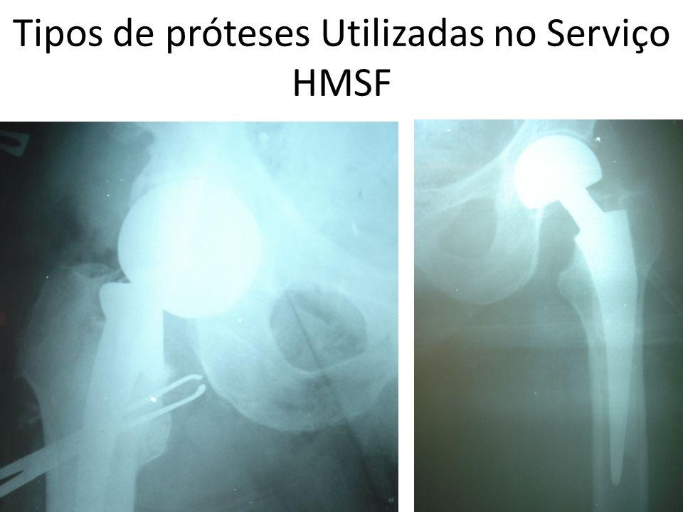 Tipos de próteses Utilizadas no Serviço HMSF