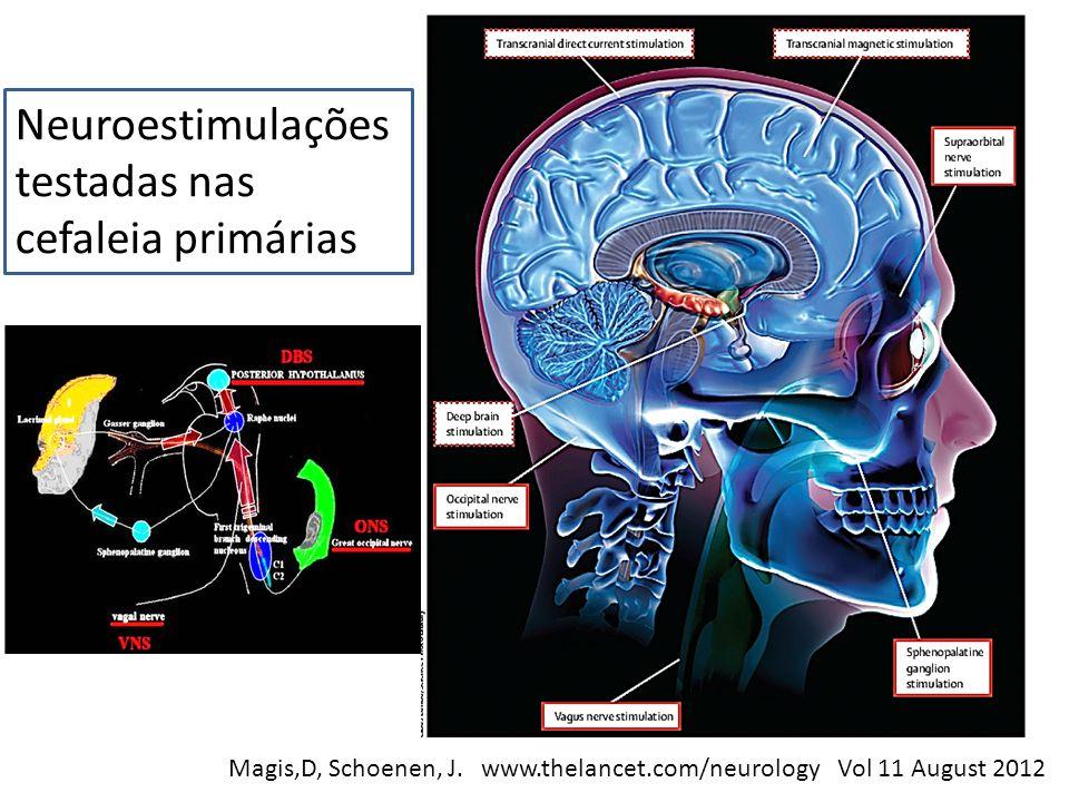 Neuroestimulações testadas nas cefaleia primárias