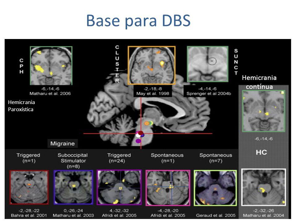 Base para DBS Hemicrania contínua Hemicrania Paroxística