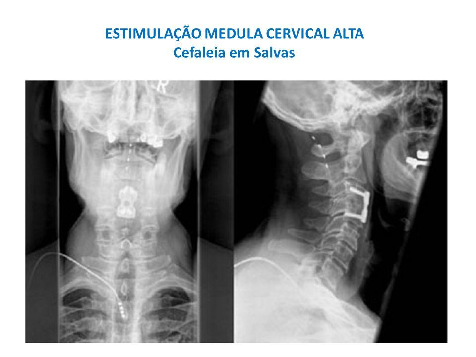 ESTIMULAÇÃO MEDULA CERVICAL ALTA