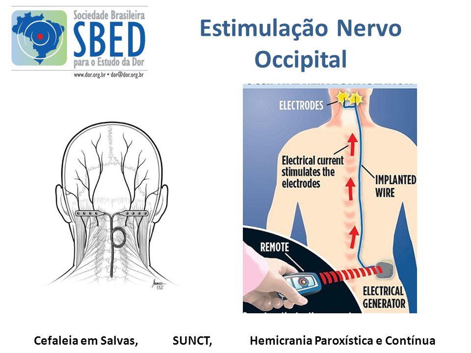 Estimulação Nervo Occipital