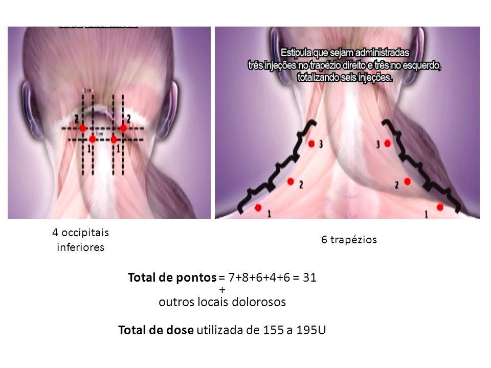 outros locais dolorosos Total de dose utilizada de 155 a 195U