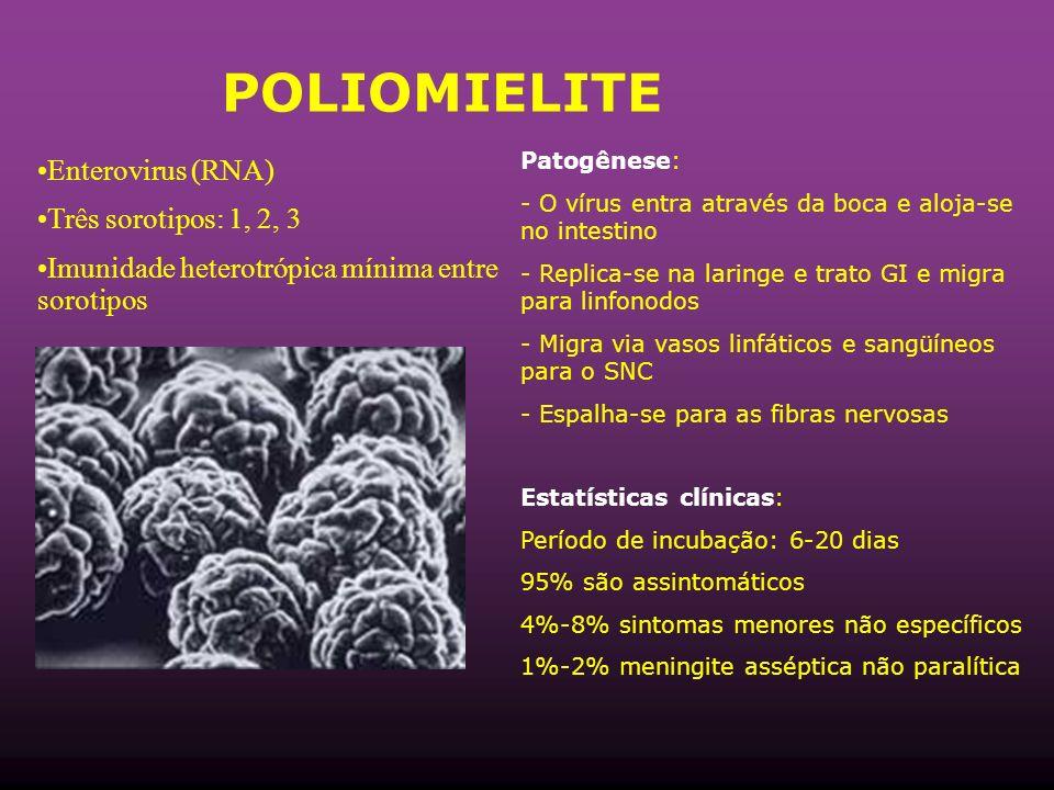 POLIOMIELITE Enterovirus (RNA) Três sorotipos: 1, 2, 3