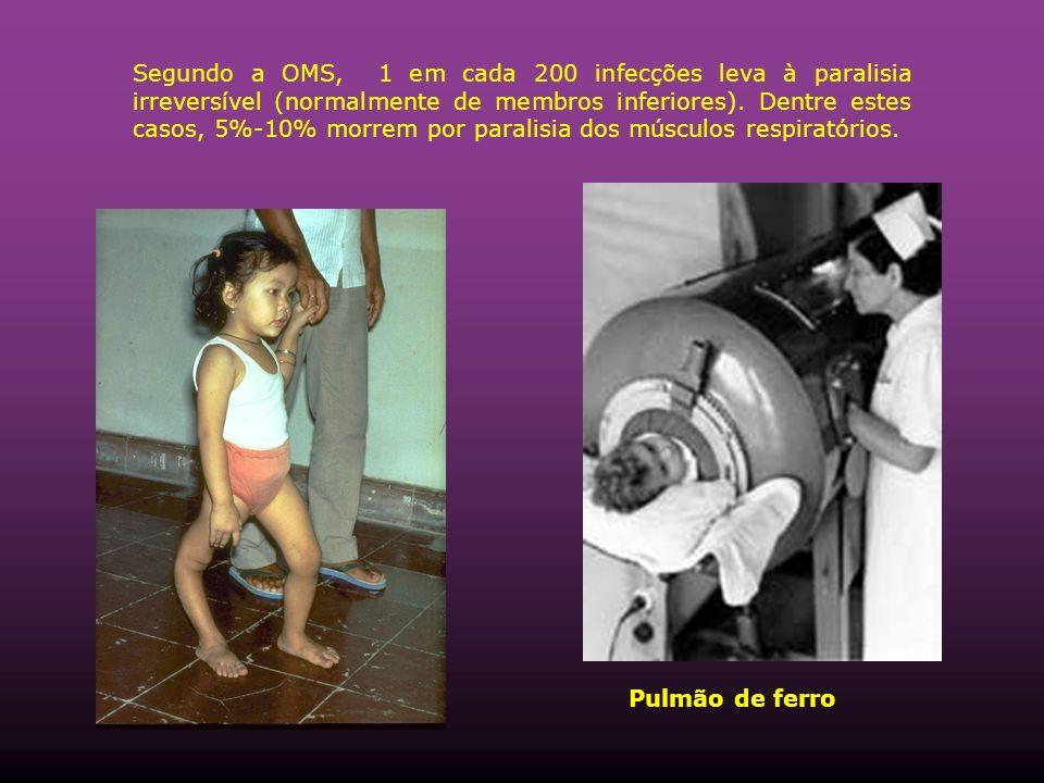 Segundo a OMS, 1 em cada 200 infecções leva à paralisia irreversível (normalmente de membros inferiores). Dentre estes casos, 5%-10% morrem por paralisia dos músculos respiratórios.