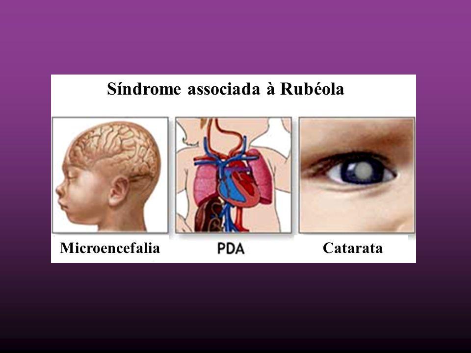 Síndrome associada à Rubéola