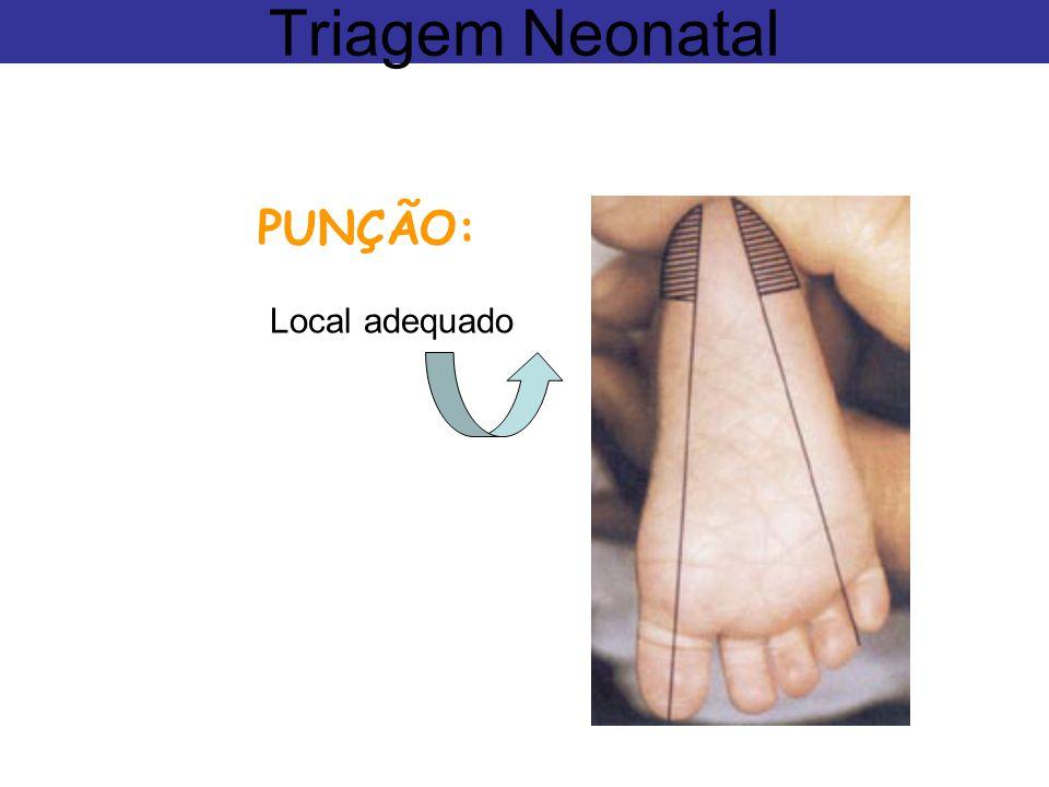 Triagem Neonatal PUNÇÃO: Local adequado