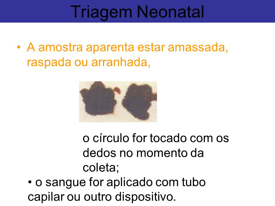 Triagem Neonatal A amostra aparenta estar amassada, raspada ou arranhada, o círculo for tocado com os dedos no momento da coleta;