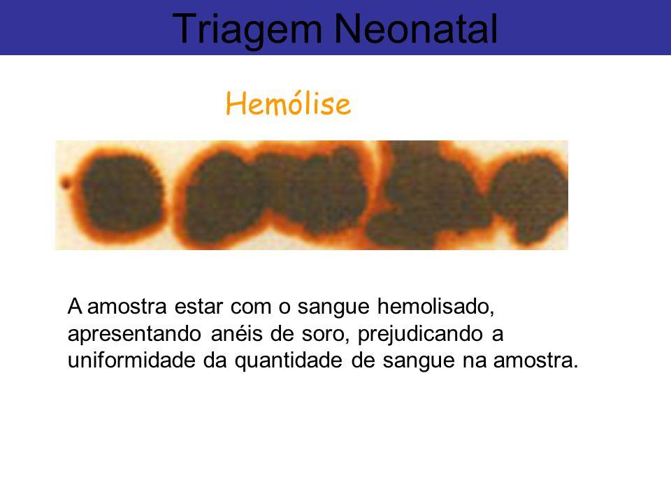 Triagem Neonatal Hemólise