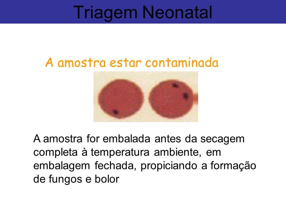 Triagem Neonatal A amostra estar contaminada