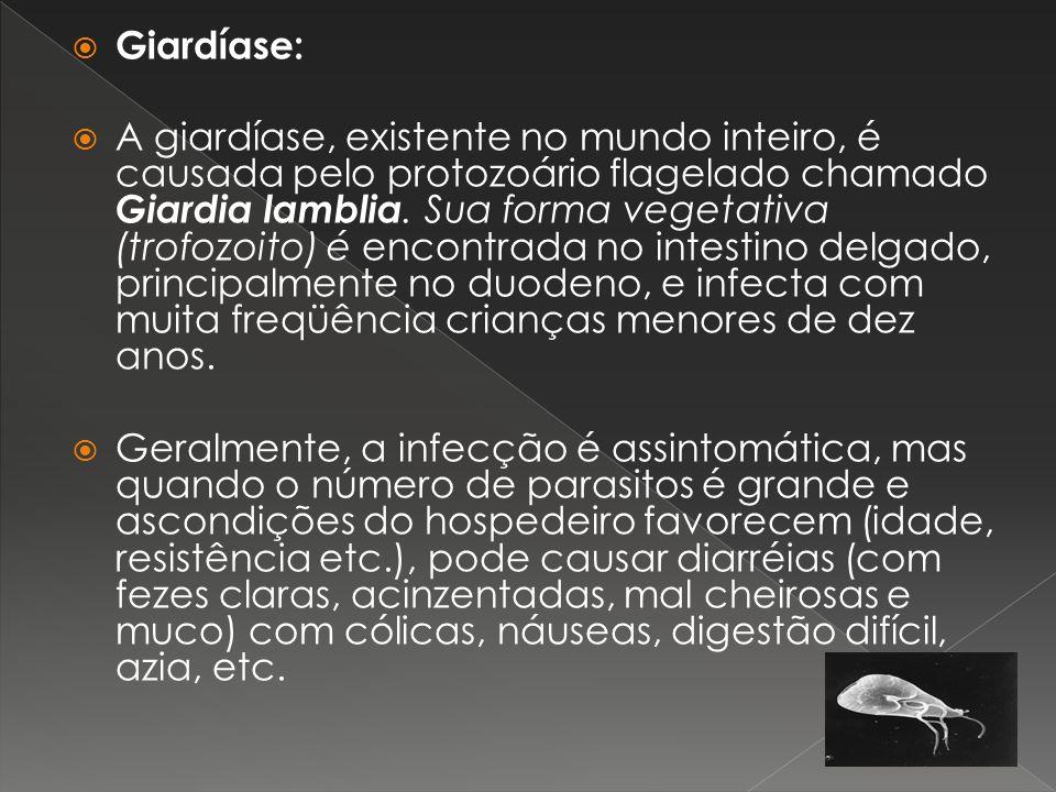 Giardíase: