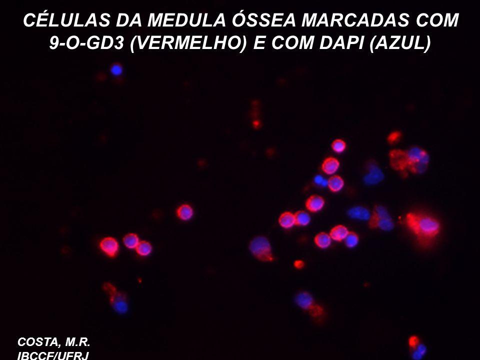 CÉLULAS DA MEDULA ÓSSEA MARCADAS COM