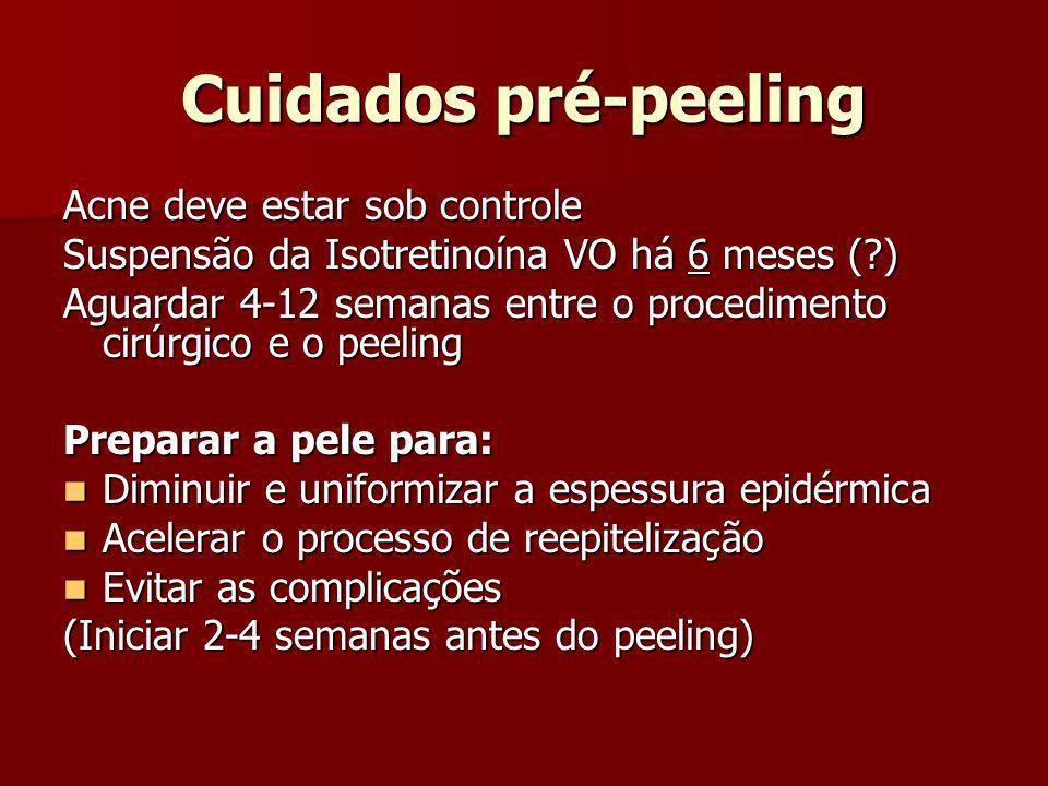 Cuidados pré-peeling Acne deve estar sob controle
