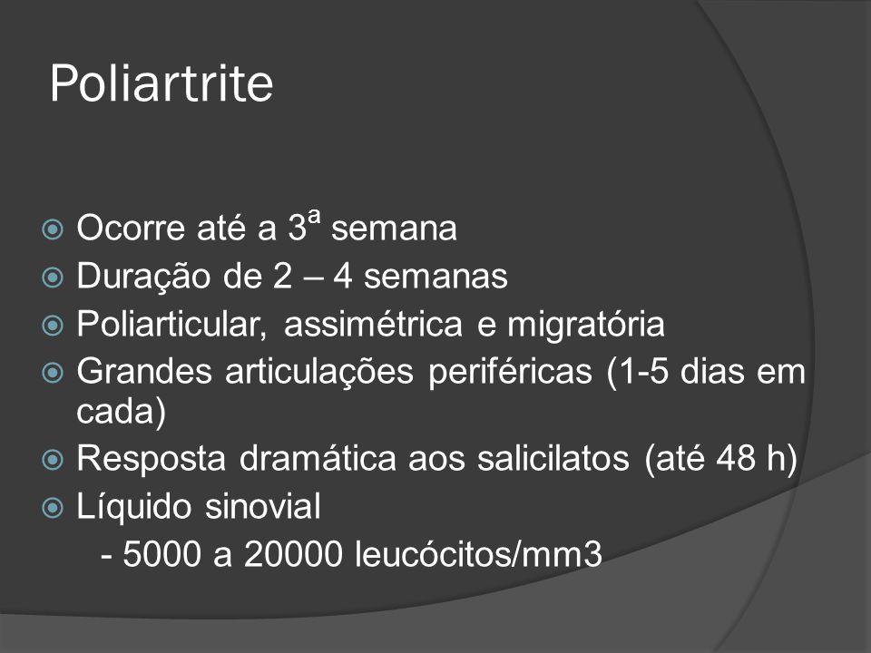 Poliartrite Ocorre até a 3a semana Duração de 2 – 4 semanas