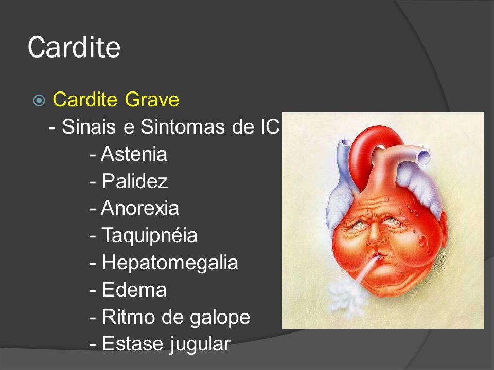 Cardite Cardite Grave - Sinais e Sintomas de IC - Astenia - Palidez