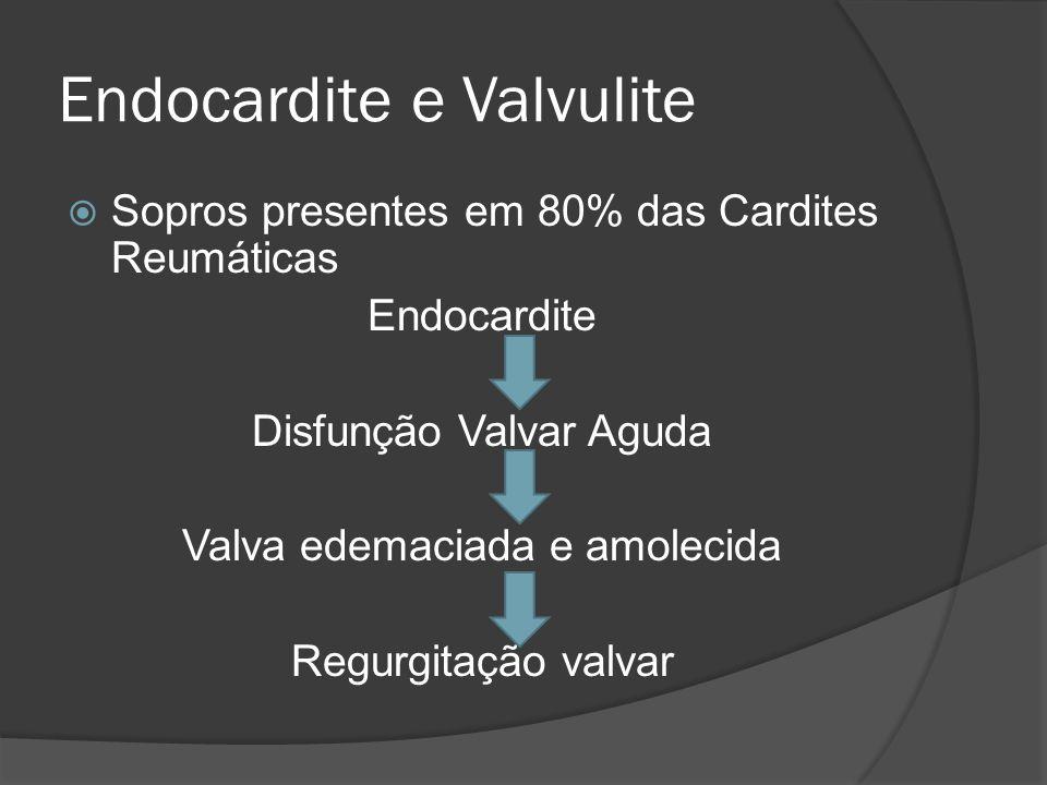 Endocardite e Valvulite