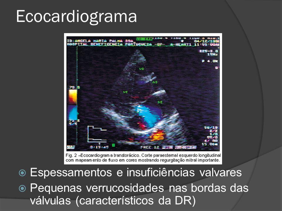 Ecocardiograma Espessamentos e insuficiências valvares