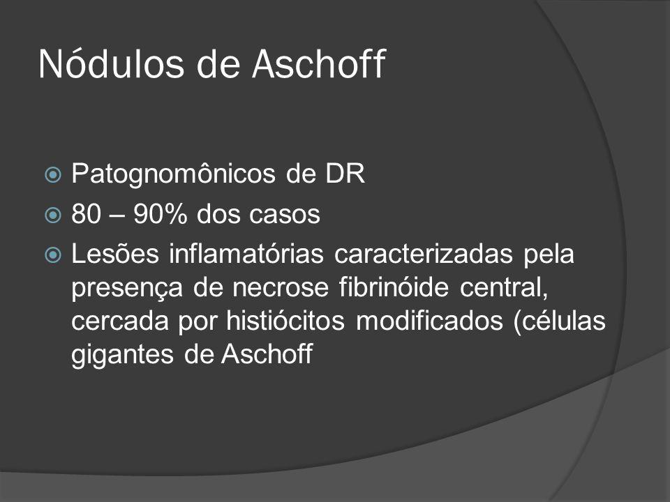 Nódulos de Aschoff Patognomônicos de DR 80 – 90% dos casos