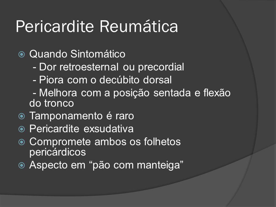 Pericardite Reumática