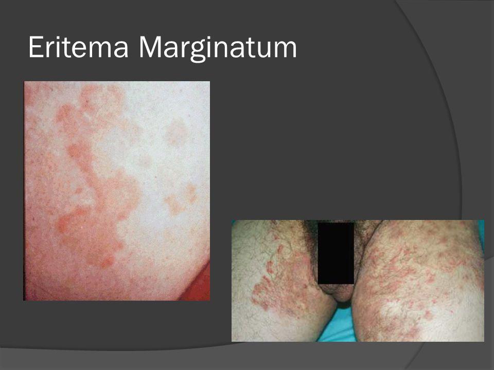 Eritema Marginatum