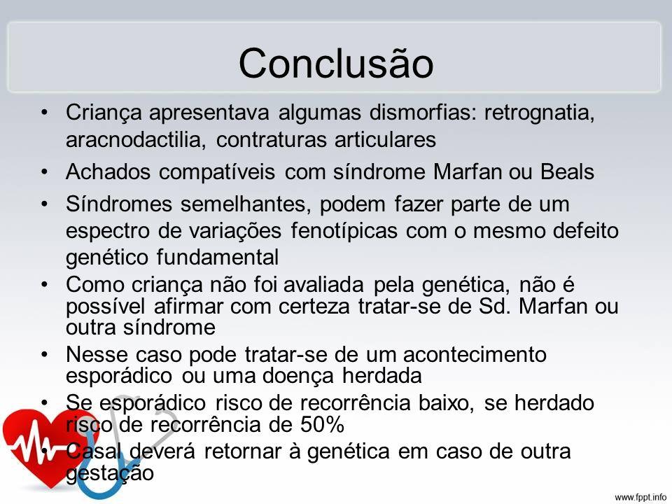 ConclusãoCriança apresentava algumas dismorfias: retrognatia, aracnodactilia, contraturas articulares.