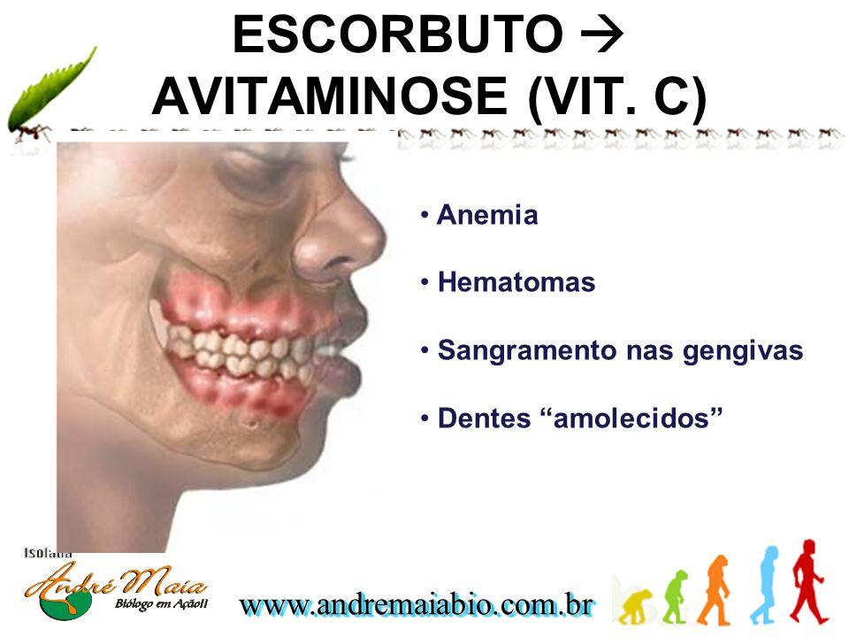 ESCORBUTO  AVITAMINOSE (VIT. C)