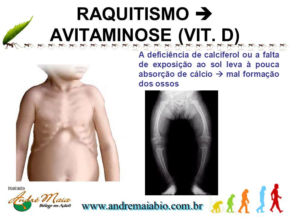 RAQUITISMO  AVITAMINOSE (VIT. D)