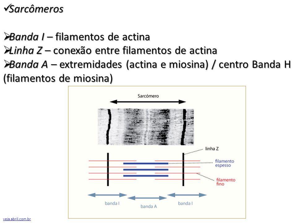 Banda I – filamentos de actina